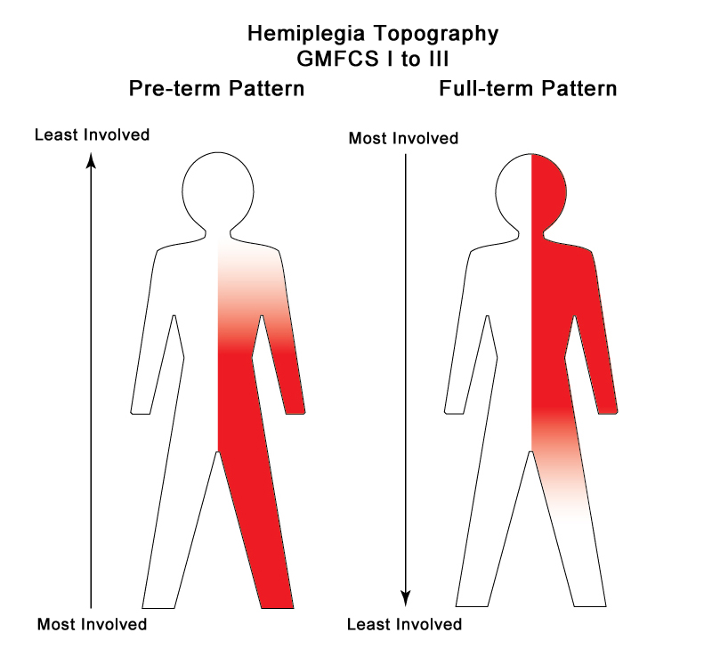 the topography of hemiplegia is much more complex than diplegia the differences relate both to the type and extent of brain damage as well as the timing of