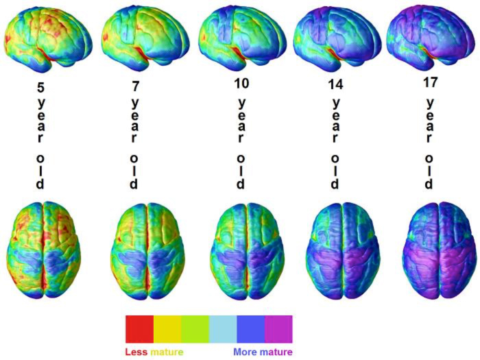 Source: Paul Thompson, Ph.D. UCLA Laboratory of Neuroimaging