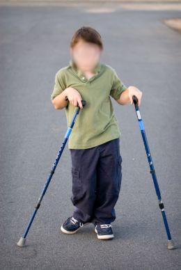spastic_cerebral_palsy